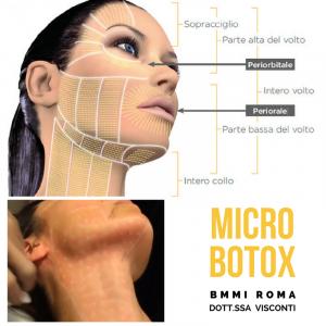 Microbotulino o Microbotox