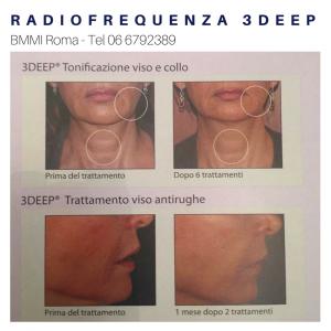 Foto prima e dopo della Radiofrequenza 3DEEP collo e viso